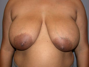 Breast Reduction before 292204