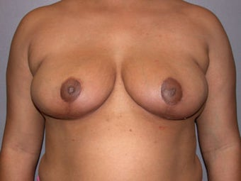 Breast Reduction after 292204