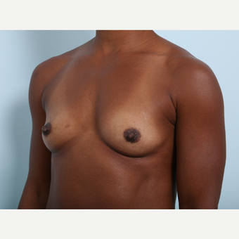 Breast Augmentation before 3345315