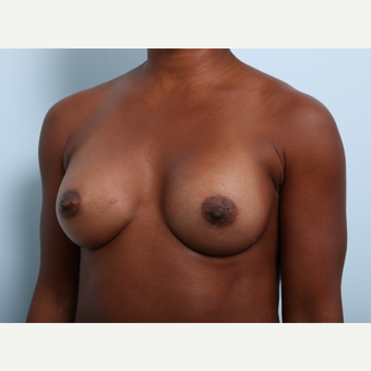 Breast Augmentation after 3345315