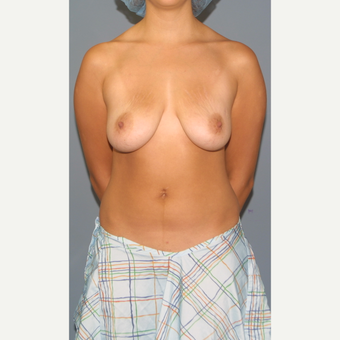 25-34 year old woman treated with Breast Lift with Implants before 3452900