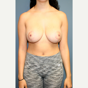 25-34 year old woman treated with Breast Lift with Implants after 3452900