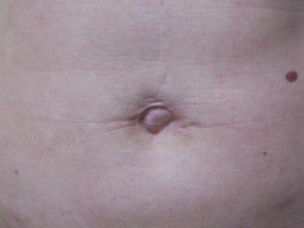 Umbilicoplasty to remove lose skin around belly button after 981753