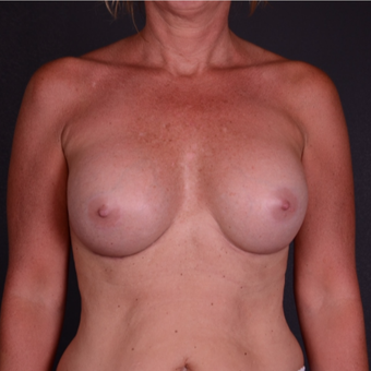 45-54 year old woman treated with Breast Implant Revision after 3738167