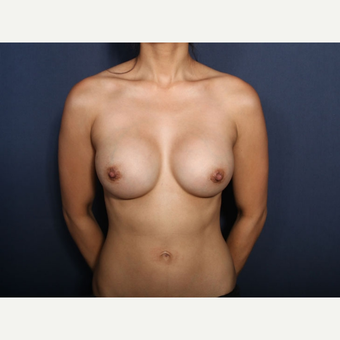 25-34 year old woman treated with Breast Augmentation (view 1 of 2) after 3169061