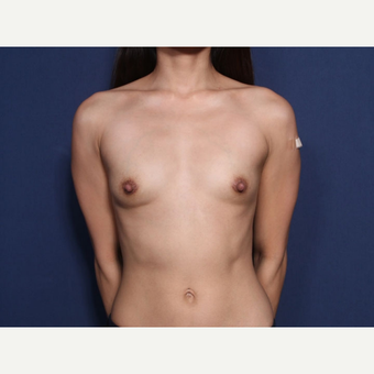 25-34 year old woman treated with Breast Augmentation (view 1 of 2) before 3169061