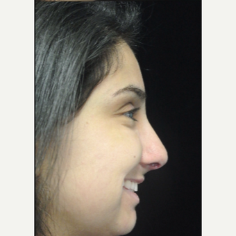 Scarless Closed Rhinoplasty after 3586182