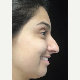 Scarless Closed Rhinoplasty before 3586182
