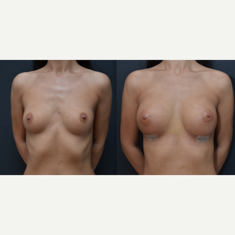 25-34 year old woman treated with Breast Implants before 3238793