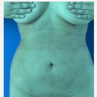 35-44 year old woman treated with Liposuction after 2834374