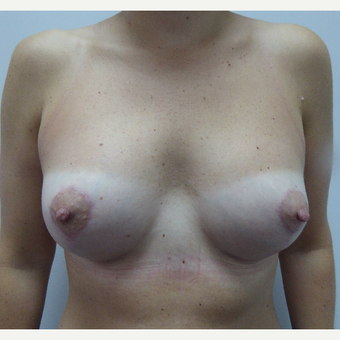 25-34 year old woman treated with Breast Lift after 3428114