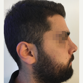 25-34 year old man treated with Rhinoplasty after 3329819