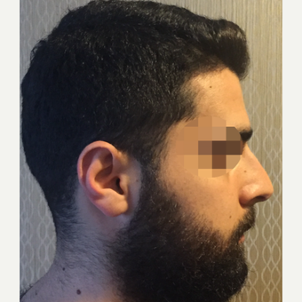 25-34 year old man treated with Rhinoplasty before 3329819