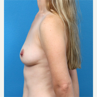 35-44 year old woman treated with Breast Implant Removal after 3219058