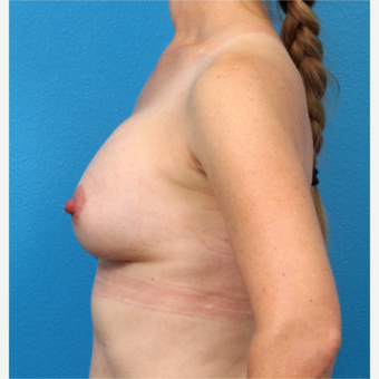 35-44 year old woman treated with Breast Implant Removal before 3219058