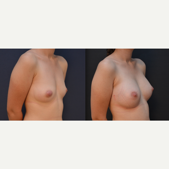 18-24 year old woman treated with Breast Augmentation before 3238827