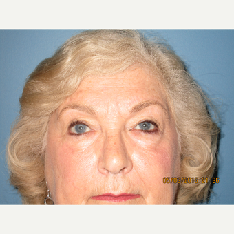 75 and up year old woman treated with Eyelid Surgery after 3724628