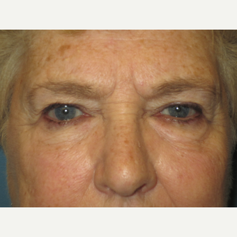 75 and up year old woman treated with Eyelid Surgery before 3724628