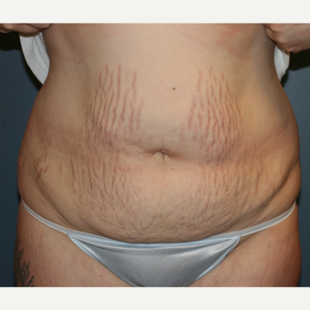 Laser Liposuction and Tummy Tuck before 3372009