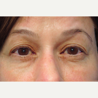 55-64 year old woman treated with Upper Blepharoplasty Surgery before 3507072