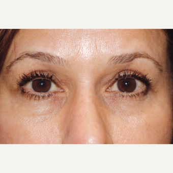 55-64 year old woman treated with Upper Blepharoplasty Surgery after 3507072