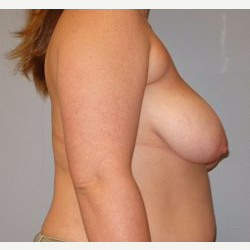 25-34 year old woman treated with Breast Reduction before 3122518