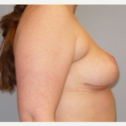 25-34 year old woman treated with Breast Reduction after 3122518