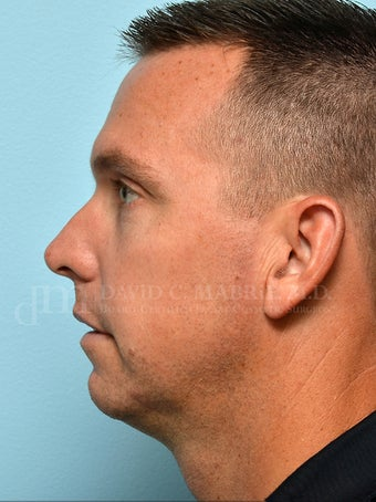 Non-Surgical Chin Augmentation Using Juvederm Voluma before 1607161