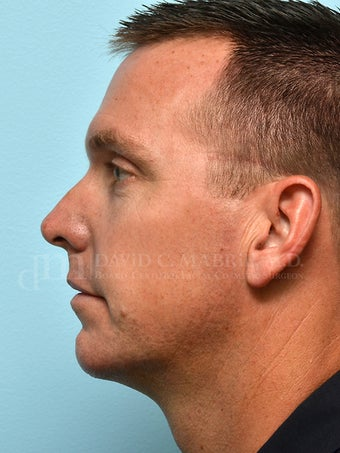 Non-Surgical Chin Augmentation Using Juvederm Voluma after 1607161