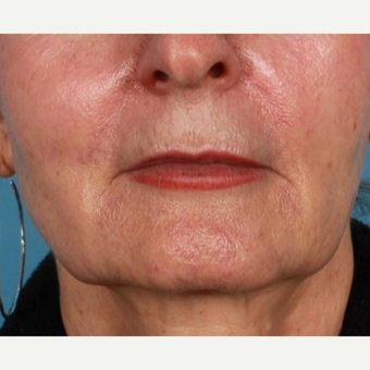 55-64 year old woman treated with Skin Tightening
