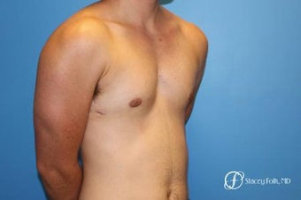18-24 year old man treated with FTM Chest Masculinization Surgery 2655982