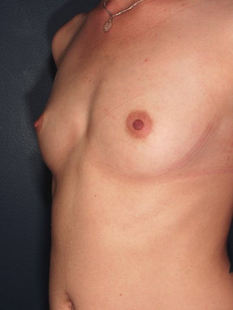 breast augmentation before 113267