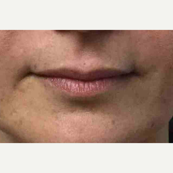 Female treated with Juvederm for Lip Augmentation before 3169137