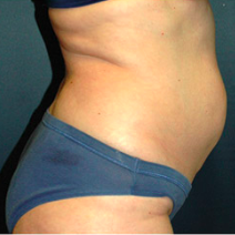 51 year old woman treated with Tummy Tuck before 3578593