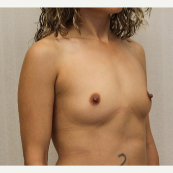 25-34 year old woman treated with Breast Augmentation before 3695614