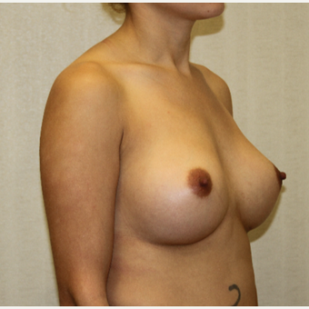 25-34 year old woman treated with Breast Augmentation after 3695614