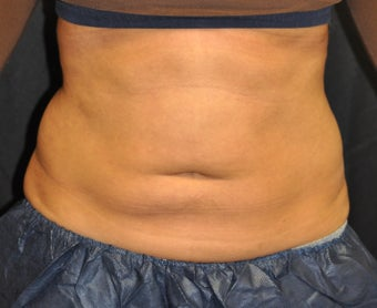 30 Year Old Female. Upper Abdomen and Love Handles treated. One Coolsculpting treatment.  before 1017413