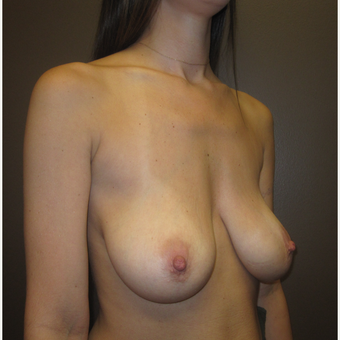 25-34 year old woman treated with Breast Lift with Implants before 3604681