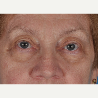 65-74 year old woman treated with Eyelid Surgery after 3844177