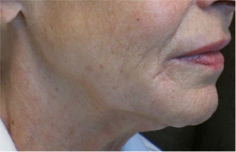 Ultherapy Neck before 1079057