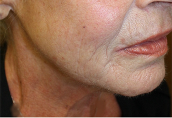 Ultherapy Neck after 1079057