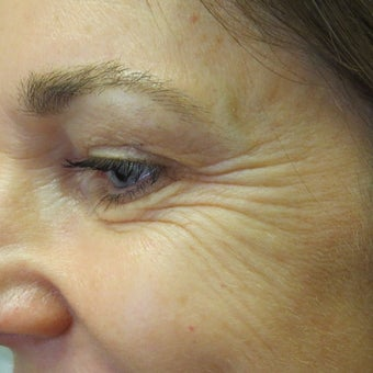 Botox to eliminate crows feet. before 2044520