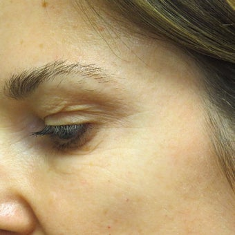 Botox to eliminate crows feet. after 2044520