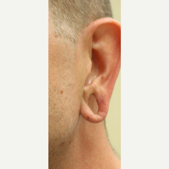 35-44 year old man treated with Ear Lobe Surgery before 3741729