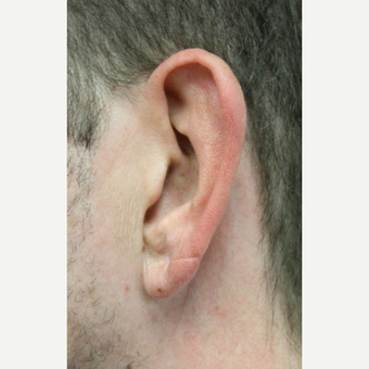 35-44 year old man treated with Ear Lobe Surgery after 3741729