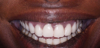 Permanent Teeth-in-1-Day Dental Implants after 1613247