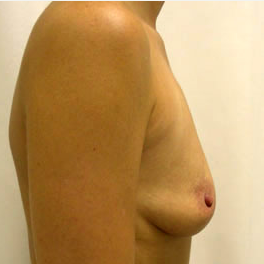 Breast Augmentation before 3681125