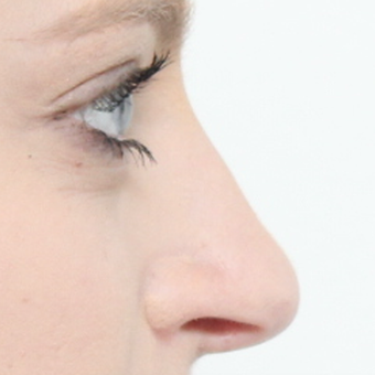 18-24 year old woman treated with Rhinoplasty after 3566047