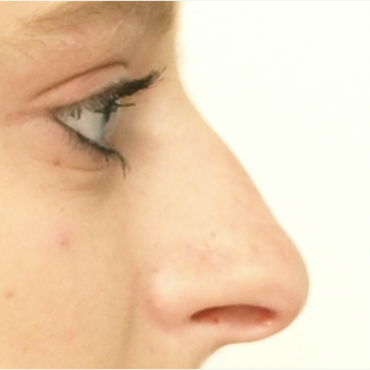18-24 year old woman treated with Rhinoplasty before 3566047
