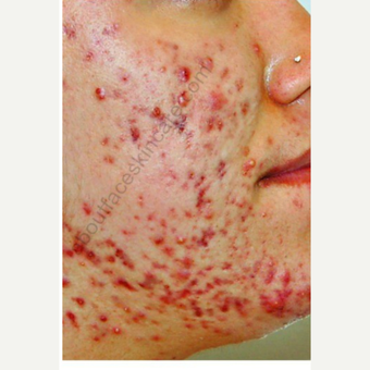 18-24 year old woman treated with Isolaz before 3300492